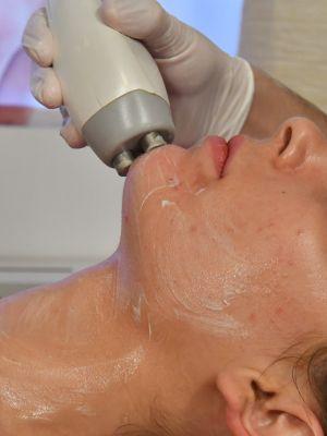 Radiofrecventa faciala