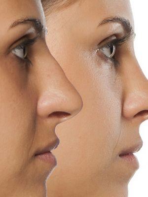 Remodelarea nasului fara operatie