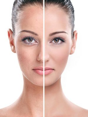 Action II Rejuvenare faciala si eliminare cicatrici