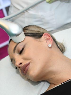Crioterapie faciala