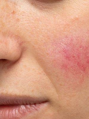 Tratament rozacee si piele sensibila