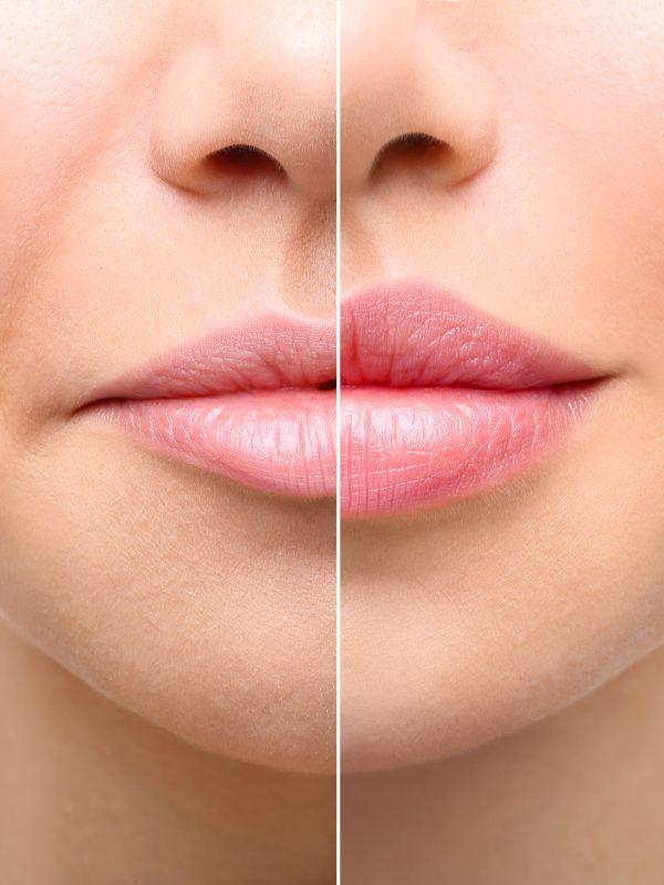 Augmentare buze